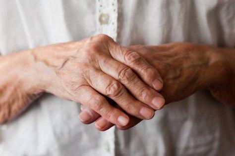 artritis-500x334